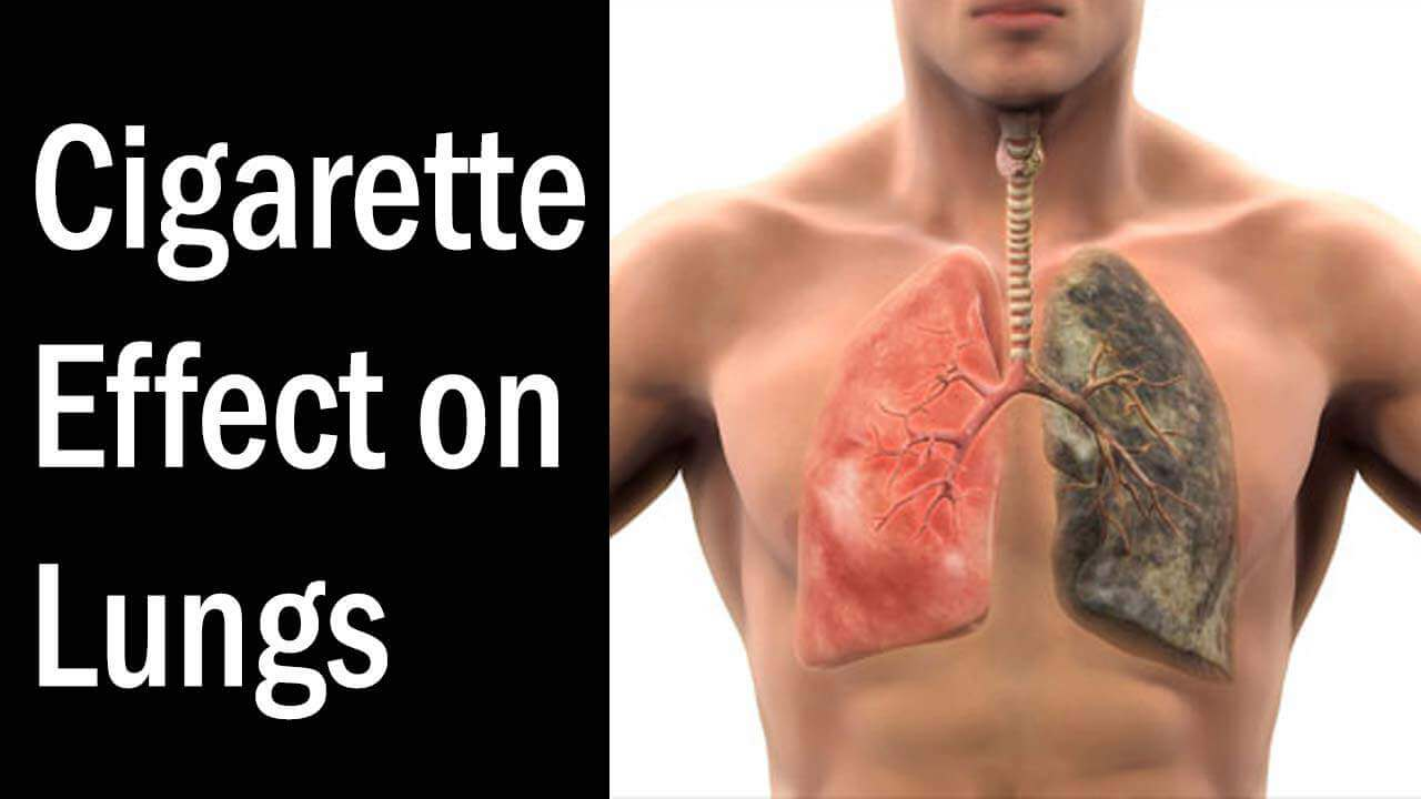 Cigarette Effect on Lungs