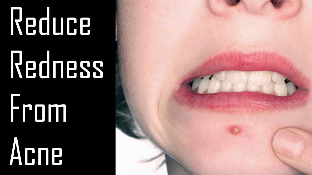 Reduce Redness From Acne
