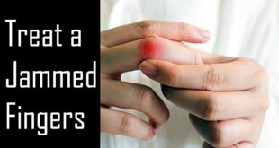 Treat a Jammed Fingers