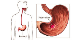 Common Causes that Lead to Peptic Ulcers