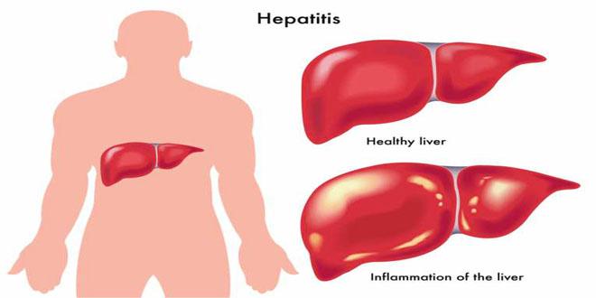 Hepatitis Ki Alamaat