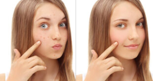 How to Get Rid of Blind Pimple