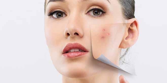 Pimple Hatane Ke Tarike