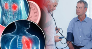 Prehypertension Blood Pressure
